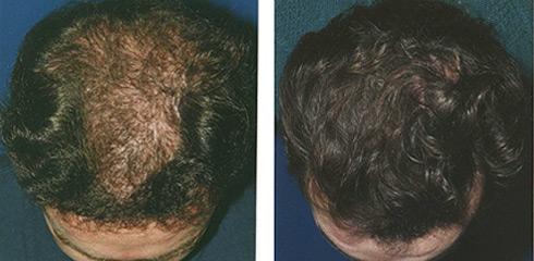 microgreffes cheveux greffe cheveux bordeaux clinique esth tique aquitaine. Black Bedroom Furniture Sets. Home Design Ideas