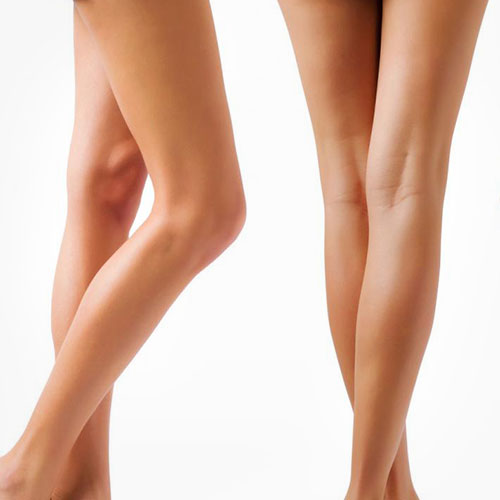 chirurgie esthetique jambes