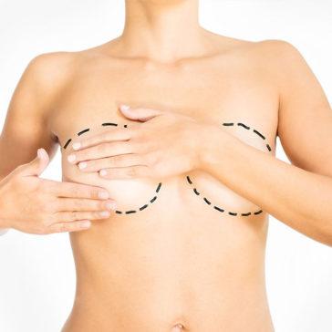 Lipomodelage-des-seins-bordeaux