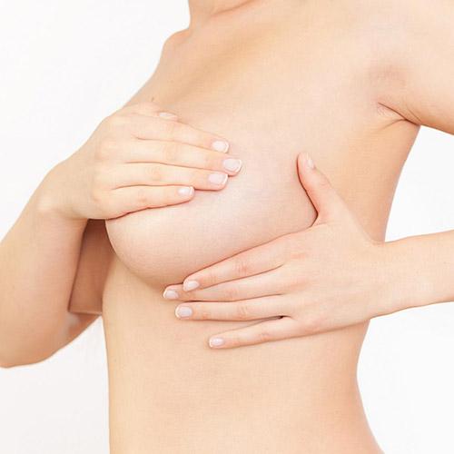 Chirurgie-ptose-mammaire-bordeaux