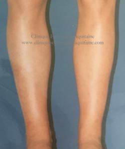 chirurgie esth tique des jambes bordeaux mollets cuisses chevilles. Black Bedroom Furniture Sets. Home Design Ideas