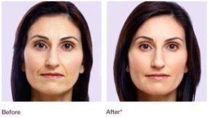 Injection acide hyaluronique bordeaux clinique - Contour des yeux acide hyaluronique ...