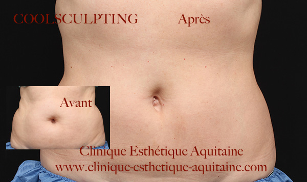 coolsculpting bordeaux la clinique esth tique aquitaine. Black Bedroom Furniture Sets. Home Design Ideas