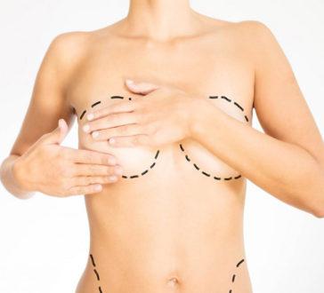 Chirurgie esthetique du corps à Bordeaux