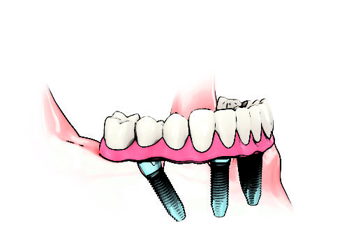 chirurgien dentiste protheses dentaires