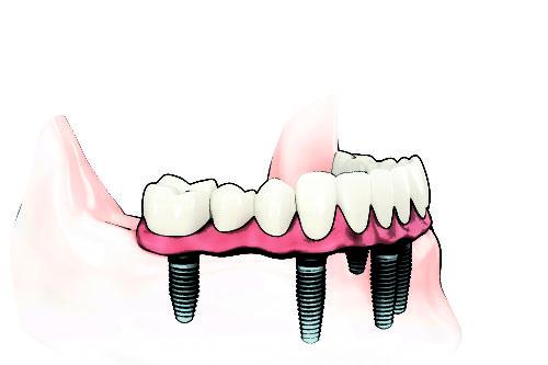 prothese-dentaire-sur-implant-bordeaux