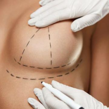 chirurgie mammaire bordeaux