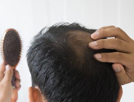 chute cheveux traitement clinique esthetique