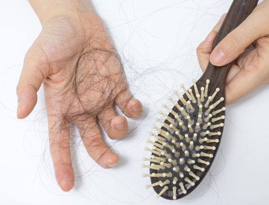 chute de cheveux importante