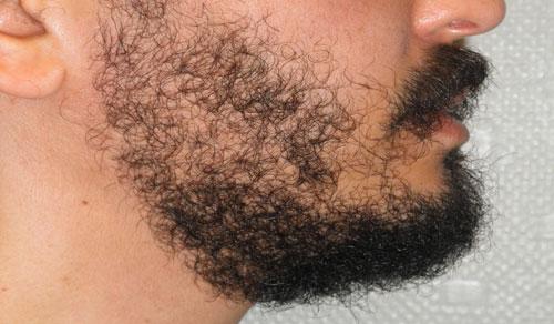 microgreffe barbe bordeaux