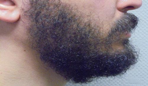 resultat microgreffe barbe
