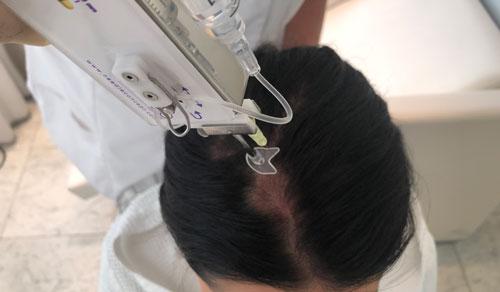 traitement capillaire bordeaux