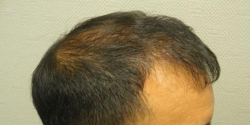 greffe de cheveux après