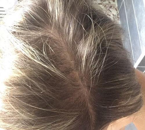 resultat traitement cheveux PRP