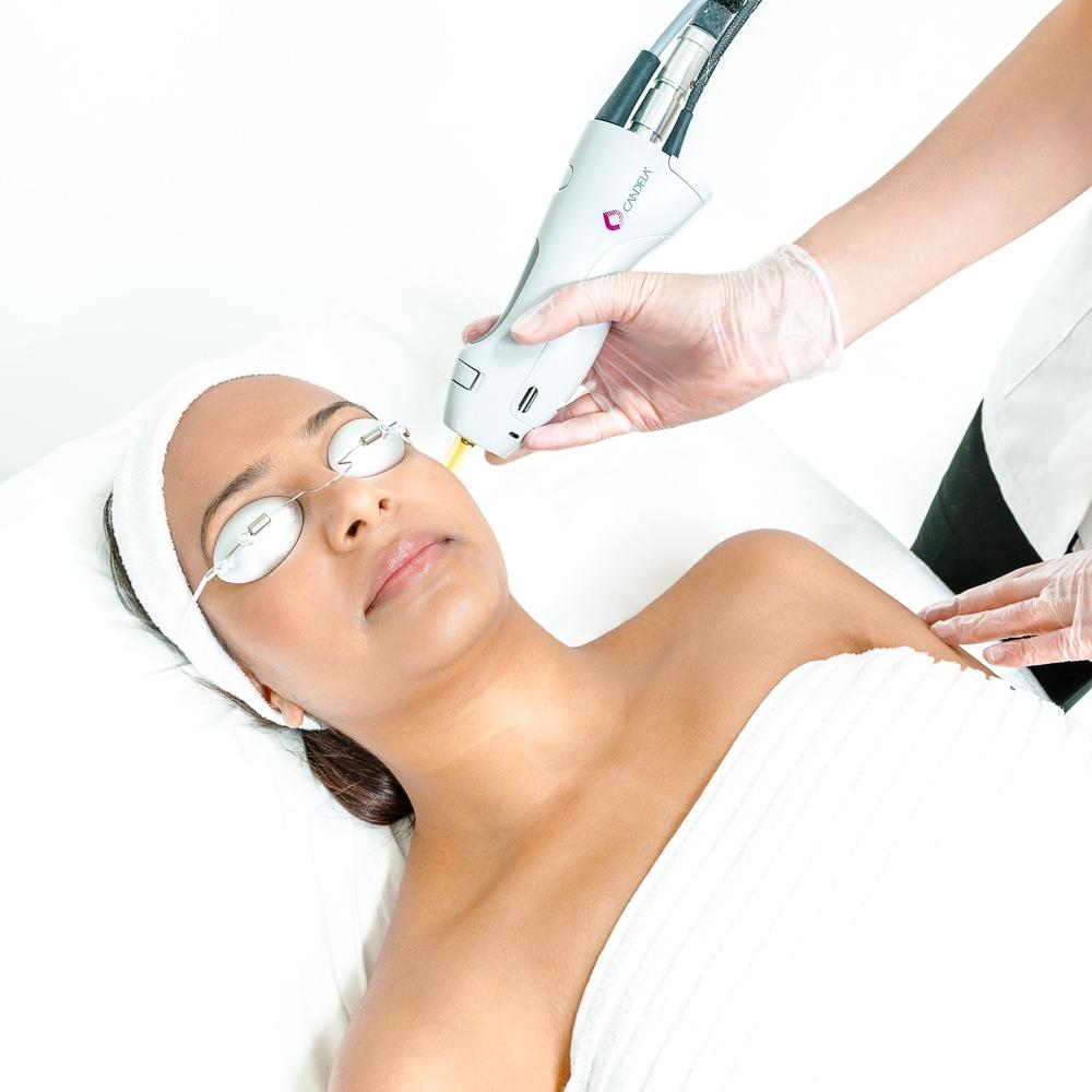 epilation laser femme bordeaux