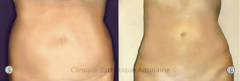liposuccion lipoaspiration ventre