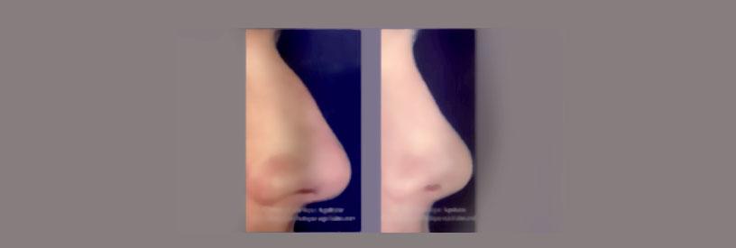 avant apres rhinoplastie bordeaux