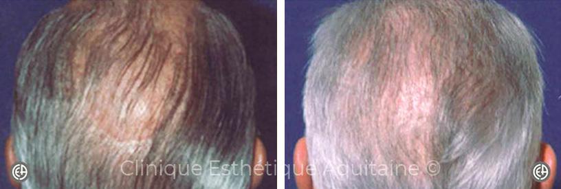 greffe de cheveux homme bordeaux