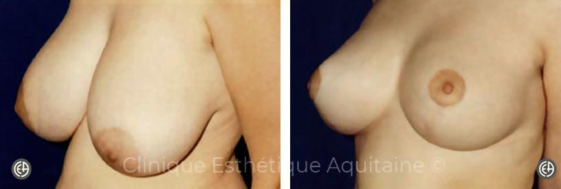 reduction mammaire bordeaux