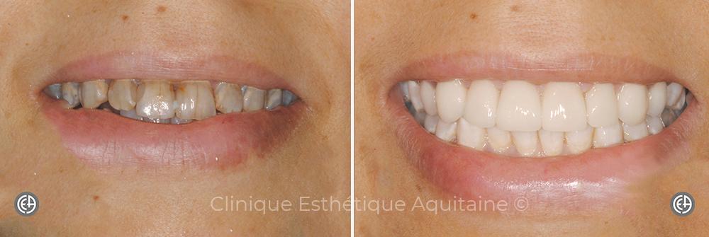 Facette dentaire Bordeaux Femme