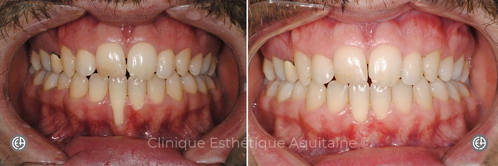 Greffe dentaire Bordeaux Homme