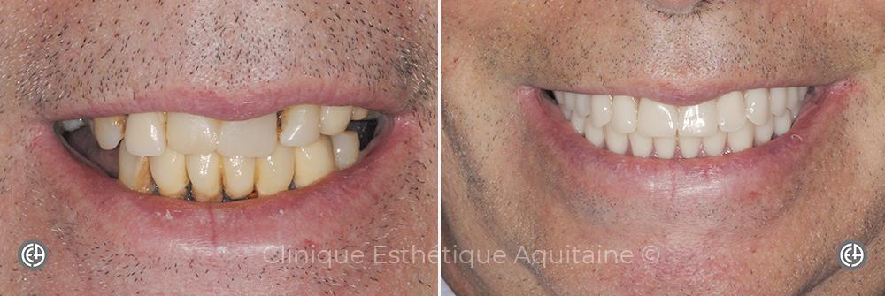 Zygomatique dentaire Bordeaux Homme