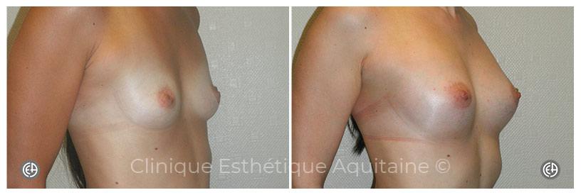 lipofilling mammaire bordeaux