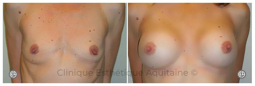augmentation des seins bordeaux