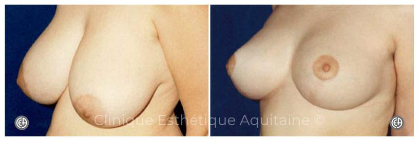 réduction mammaire bordeaux