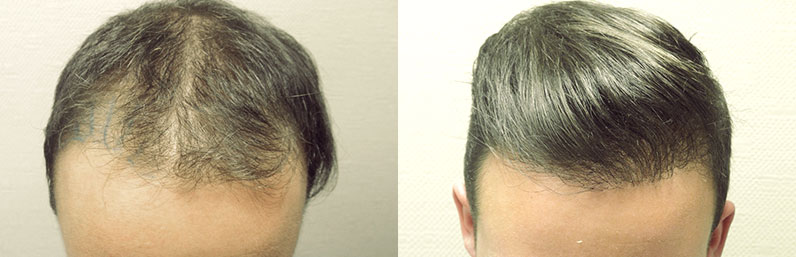 cas avant apres greffe cheveux