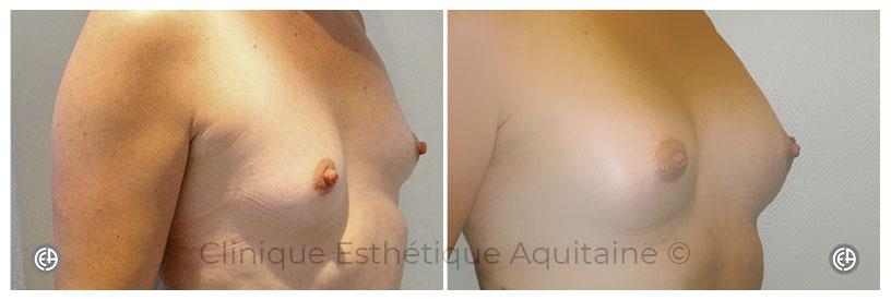 lipofilling mammaire cas clinique